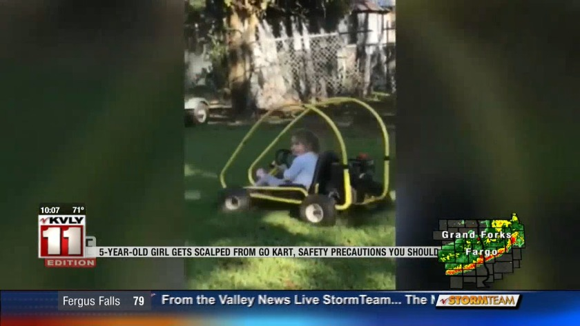 5-year-old Louisiana girl gets scalped from go-kart, how