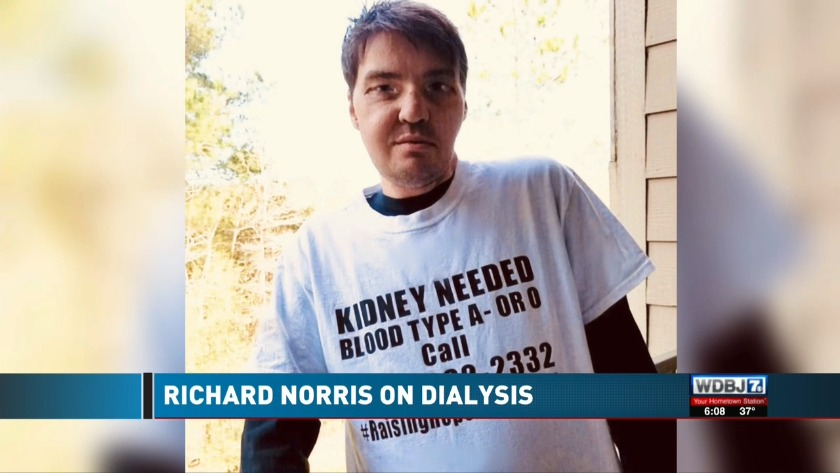 Richard Norris Update: Full Facial Transplant Recipient's