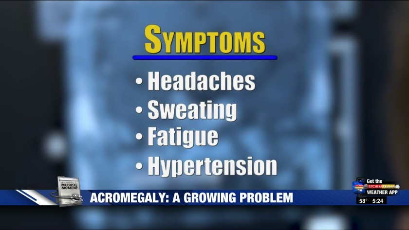 Acromegaly: A growing problem